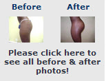 Buttock Implant Photos