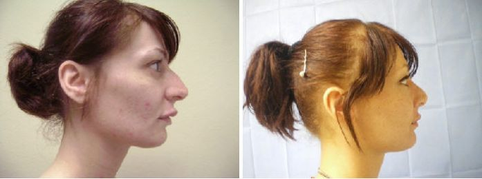 Rhinoplasty Before And After Pictures California